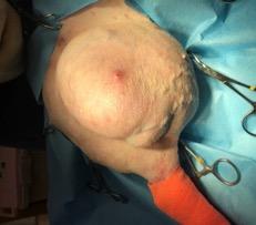 軟部組織肉腫